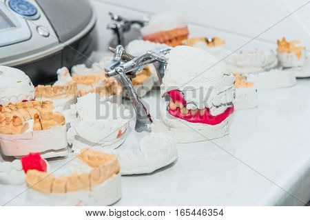 Close Up Many Dental Gypsum Models. Plaster Cast Stomatologic Human Jaws Prothetic Laboratory, Selec