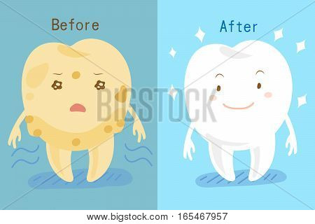 cute cartoon tooth whitening before and after
