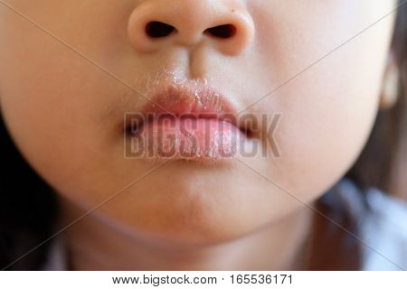 Close-up of mouth Asian girl with allergies skin peeling and itching.