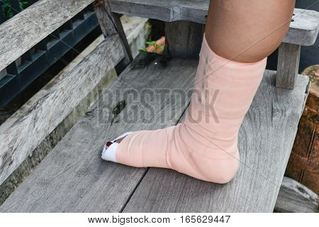 Women foot with splint on the wooden chair