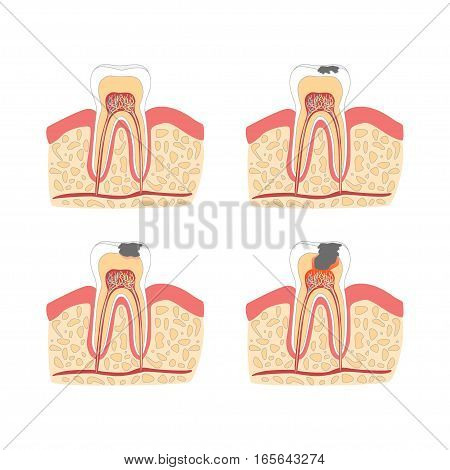 Cartoon Tooth with Stages of Dental Caries Formation Set Flat Design Style. Vector illustration