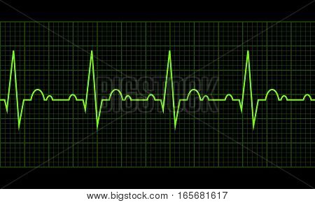 Cardiac cycle. Heart beat cardiogram line. Vector illustration eps10. RGB color model