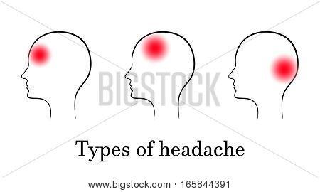 Types of headache, contour medical concept. Vector.