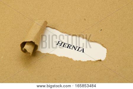Hernia word written under torn paper .