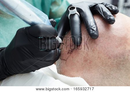 Cosmetologist making permanent makeup on man head - tricopigmentation