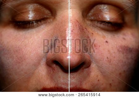 One Half Of The Face In Pigmentation And Brown Spots, The Other Side Of The Face After Laser Polishi
