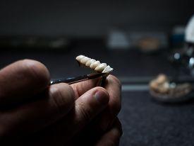 Dental Technician Will Design Dental Crowns. Close-up. Laboratory.