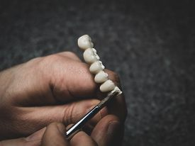 A Dental Technician Makes A Prosthetic Teeth. Laboratory. Close-up.