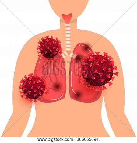 Lung Disease Coronavirus. Coronavirus Infection Of Human Lungs Cells In The Human Body Isolated On W