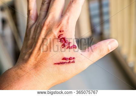 Focus Dog Bite Wound And Blood On Hand. Infection And Rabies Concept. Pet Care And Rabies Prevention