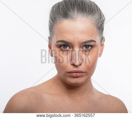 Face of old tired woman with wrinkles, dark circles, acne, comedones and and gray hair. Anti-aging, beauty treatment, aging and youth, lifting, antiaging, skincare, hydration, plastic surgery concept