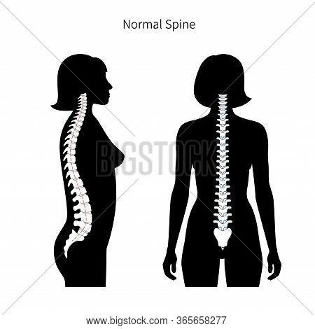 Woman Spine Vector Illustration. Backbone And Vertebral Column Anatomy. Scoliosis Concept And Symbol