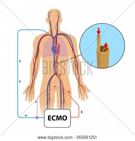 Extracorporeal Membrane Oxygenation,ecmo In Intensive Care Department
