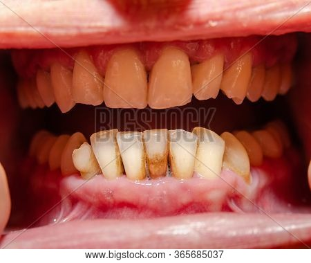 Oral Cavity, Groomed Teeth With Signs Of Periodontal Disease.