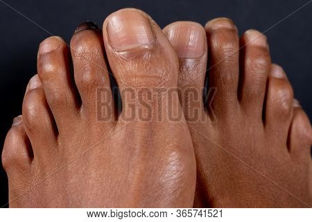 Hammer Toe On The Second Toe Of A Mixed-race Woman In Front Of Black Background. Concept For Medical