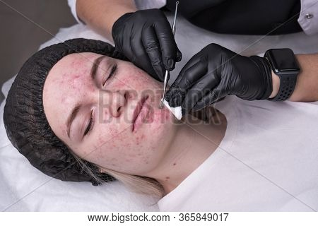 Beautician Make Procedure For Cleaning Skin With Steel Tool From Blackheads And Acne In Cosmetology