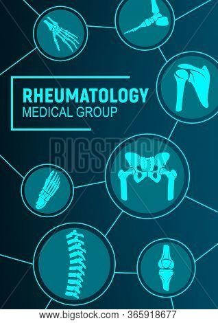 Rheumatology, Joints And Rheumatic Disorder Medical Health Care. Vector Human Skeleton Parts Hand, F