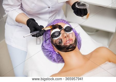 Process Of Carbon Face Laser Peeling Procedure In Beauty Salon. Laser Pulses Clean Skin Of The Face.