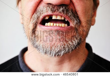 Man's Face With An Open Toothless Mouth