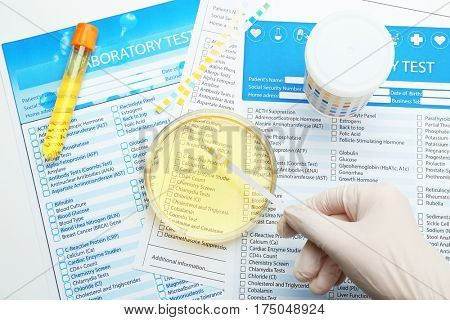 Hand in glove examining urine with test strip in laboratory