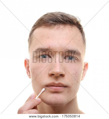 Handsome young man with problem skin and cotton bud on white background