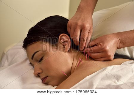 Acupuncture Neck and Cervical Spine Hands On Chinese Medicine