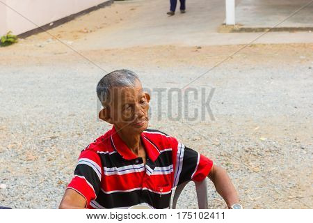 CHIANG RAI THAILAND - MARCH 20 : unidentified old asian leprosy man with sad mood on March 20 2016 in Chiang rai Thailand.