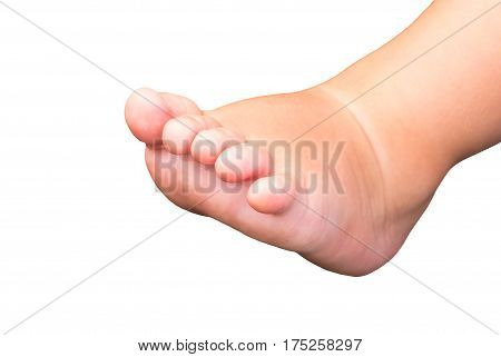 Baby foot isolated on white background. Little baby feet with fingers. Newborn child bare foot. Cute little leg of small child. Sweet foot of a baby under year. Caucasian soft skin. Children body part