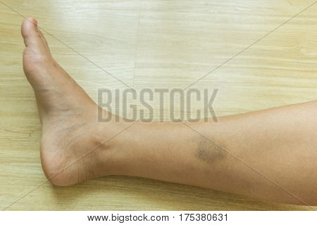 bruises on woman's leg skin,Health care concept