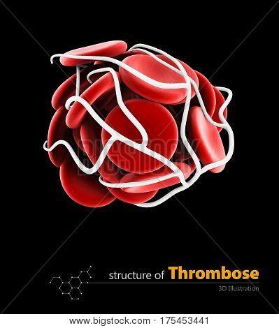 Blood clot and thrombosis medical 3d illustration concept. isolated