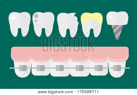 Flat health care dentist tooth implants research medical healthcare concept and medicine instrument hygiene stomatology engineering vector illustration. Oral clinical enamel ambulance equipment.