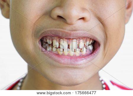 Front teeth gaps ib children / Diastemas