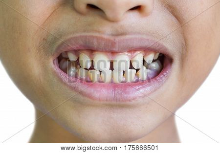 Front teeth gaps in children / Diastemas