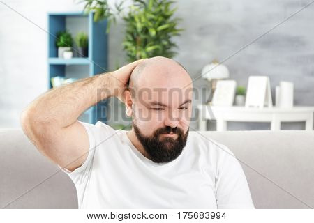 Bald adult man at home