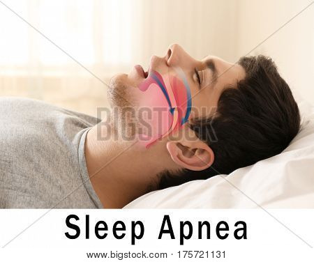 Snore problem concept. Illustration of obstructive sleep apnea