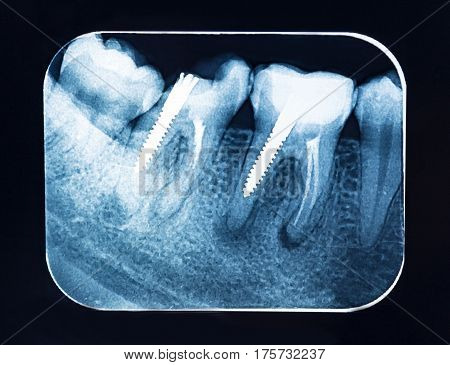 Dental X-ray teeth with dental pivot .