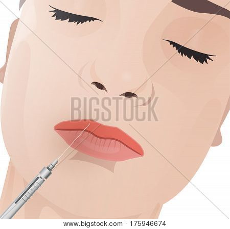 Beautiful woman face during the cosmetological procedure. Hyaluronic acid lip injections. Vector illustration in light beige colours.