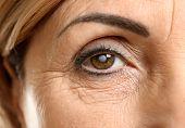 Cataract concept. Senior woman's eye, closeup poster