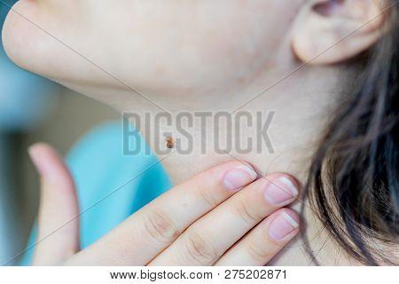A Birthmark Or A Mole On A Woman Skin