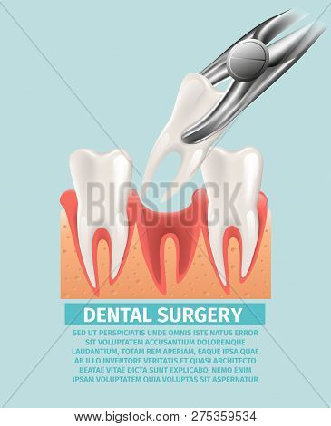 Realistic Illustration Dental Surgery In 3d Vector. Banner Image Process Dental Removal Diseased Too