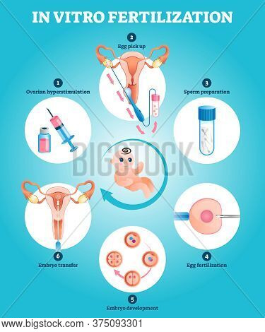 In Vitro Fertilization Artificial Pregnancy Reproduction Vector Illustration. Labeled Educational Ex