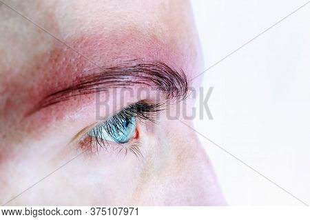Allergy Rash And Health Problem. Skin Allergy Eyebrows Permanent Makeup. Close Up Allergy Rash. Derm