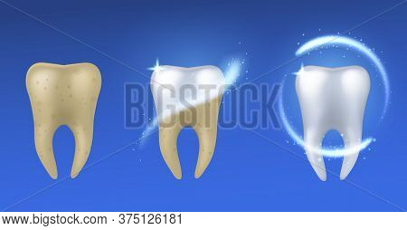 Whitening Tooth. Realistic White And Yellow Teeth Before And After Enamel Treatment, Dental Care And