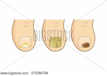 Toenail Mycosis Types. Vector Illustration. Toe Nails Health, Feel Fungus, Body Care