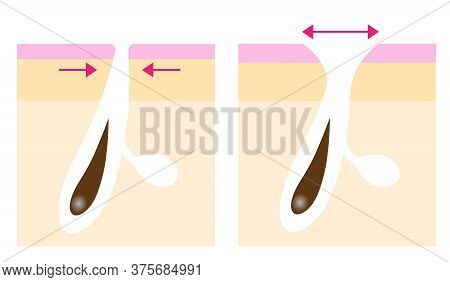 Skin Layer Of Enlarged Pores Before After Illustration. Facial And Body Care Concept.
