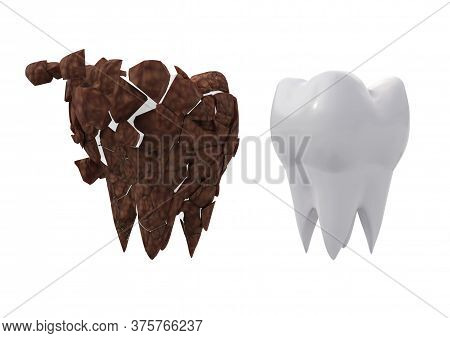 Tooth Plaque Cleansing Concept. Dirty Molar And Clean Tooth. 3d Illustration