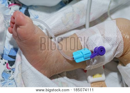 Peripheral intravenous catheter or IV Cannula in the vein of a newborn baby foot in neonatal intensive care unit