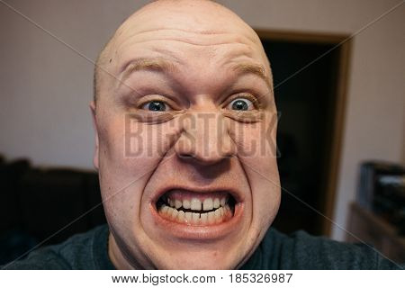 Scary Expression With Bulging Eyes And Bald Head