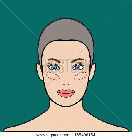 Implants in cheeks lipofilling. Beautiful female face. Vector illustration.