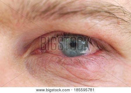 Infection of an eyelid on an eye with contact lens